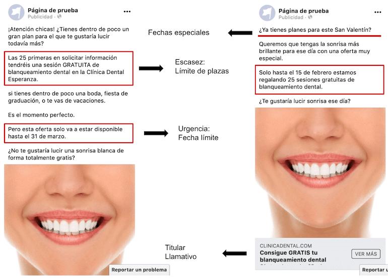 ejemplos anuncios facebook clinicas dentales